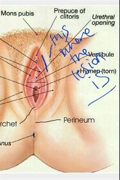 lesions vulva jpg 1049x1574