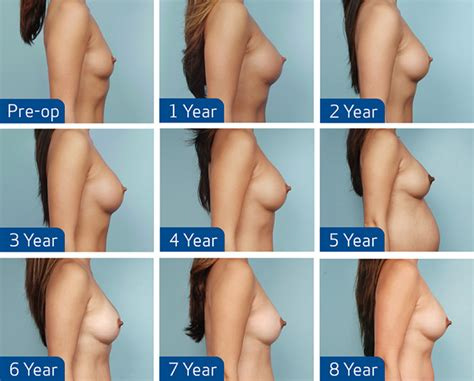 market breast implants png 970x781