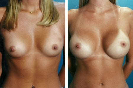 breast implant male silicone jpg 450x298