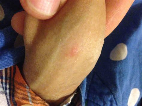 acne spots on penis jpg 3264x2448